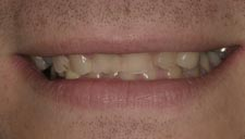 Before & After Dental Gallery