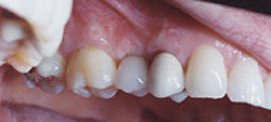 Dental Implants ~ The Perfect Fit