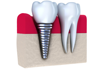 8 Reasons to Get Dental Implants