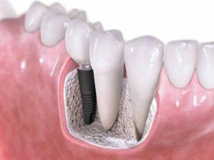 Should I get Dental Implants?
