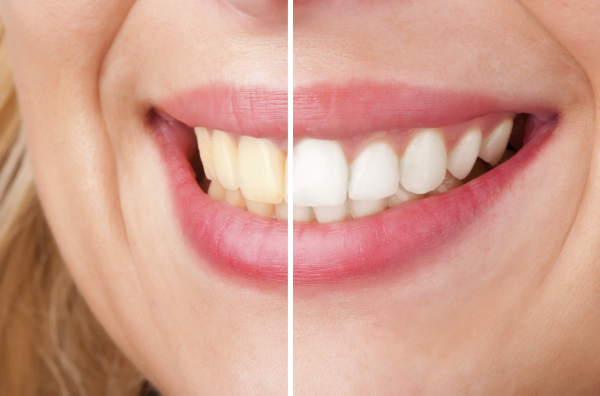 Teeth Whitening Explained